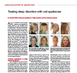 Treating Sleep Disorders With Oral Appliances